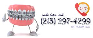 orthodontic Los Angeles